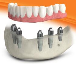 dental-implant-surgery-annapolis-250x211