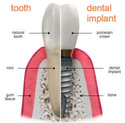 dental-implants-annapolis-250x246