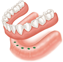 implant-supported-denture-annapolis