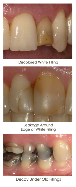 discolored-fillings-250x616