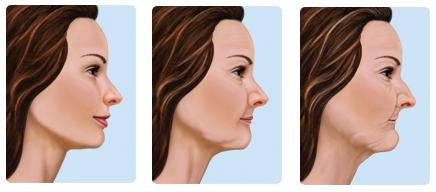effects-of-missing-teeth-before-dental-implants