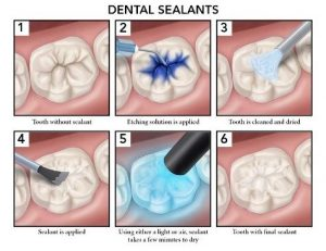 dental sealant process