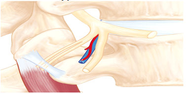 This non-invasive back surgery can give you lasting relief. Call today!