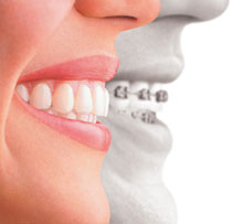 Enhance your smile with our invisible braces.