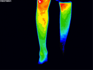 vascular thermography
