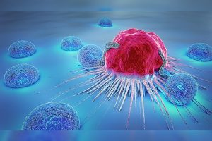 High Dose Vitamin C For Cancer-Vitamin C Therapy For Cancer 1