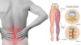 Alternative Sciatica Treatment