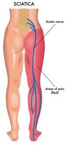 alternative sciatica treatments 1