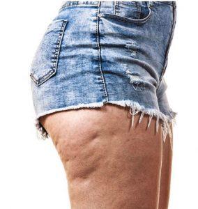 Infrared Sauna Benefits-Cellulite