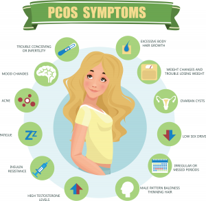 Treating PCOS with Acupuncture - PCOS Symptoms