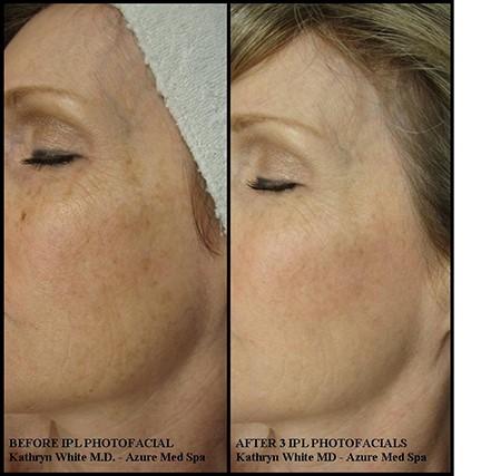 Medical Esthetic Treatments | The Skin & Body Spa