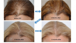 PRP Therapy   Before & After