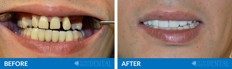 before-after-dental-bridges