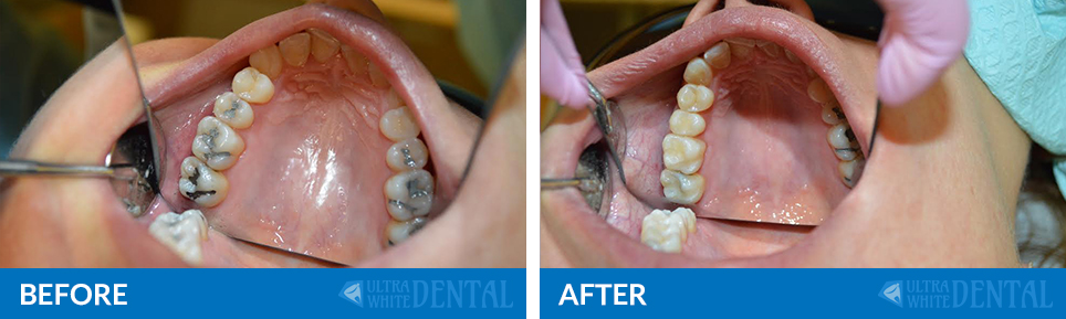 before-after-filling-removal