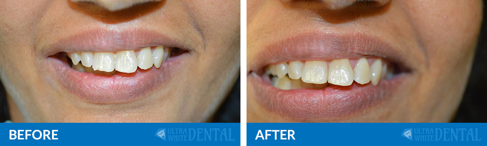 before-after-tooth
