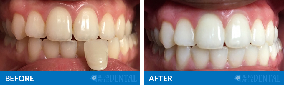 before-after5