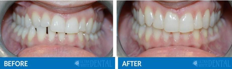Adult Orthodontics in Katy