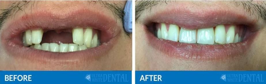 Katy TX Dental Implants