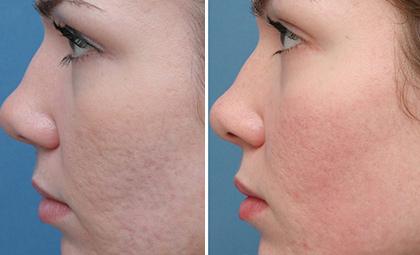Acne Scar Removal Fremont You Deserve Clearer Skin Velvet Med Spa