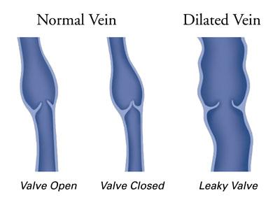 Normal_Vein_vs_Dilated_Vein
