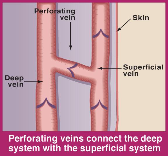 Perforating_Vein_Anatomy_Illustration