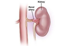 Renal Artery Duplex
