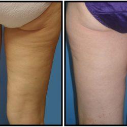 Non Invasive Fat Reduction Brownstown | Body Countouring Michigan