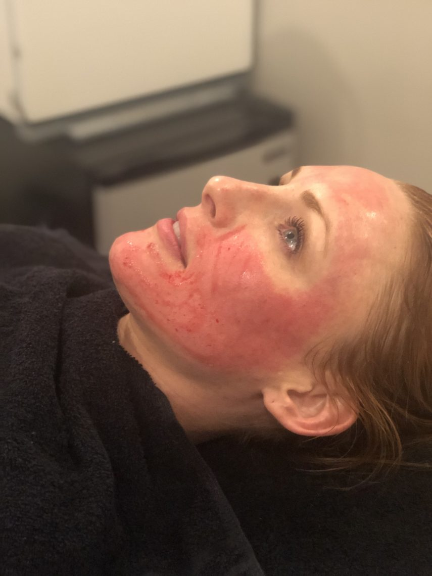 Microneedling - Top Rated Local® Medspa Scottsdale | Vibe