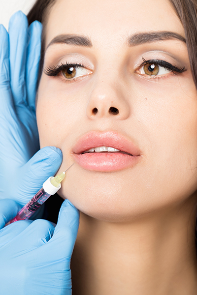 woman getting juvederm injection