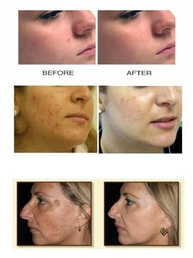 Ipl Photofacial Smithtown | Spa Services NY | Acne Treatment