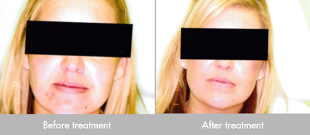 before-after-light-therapy-1-1-1