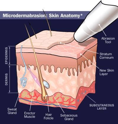 microdermabrasion-2-1