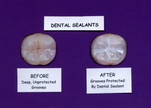 dental-sealants-example