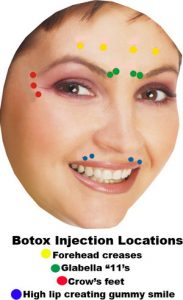 botox_injection_sites