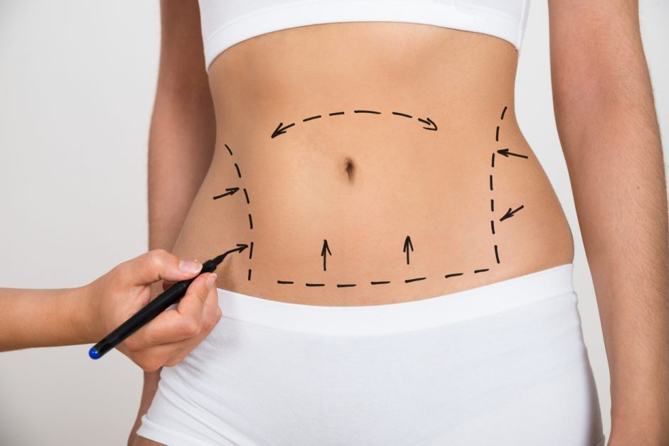 Lines being drawn on woman's stomach for liposuction.