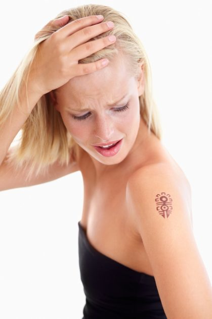 Woman wanting laser tattoo removal for her shoulder tattoo