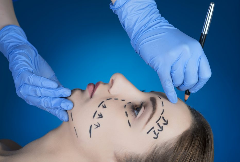 patient's face being marked by surgeon for a facelift