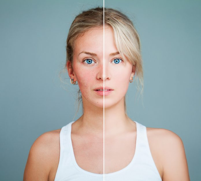 Young Model Woman with Skin Problem. Female Face Divided into two Parts one Healthy and one Unhealthy. Facial Treatment, Medicine and photofacial concept