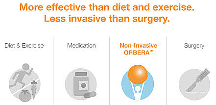 Our New Orbera Gastric Weight Loss Balloon Service At Wright
