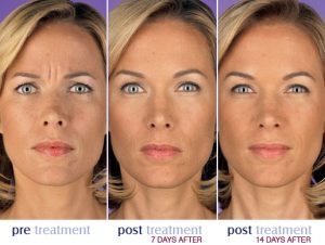 Xeomin® & Botox® Injections Fort Collins - Reverse Signs Of Aging