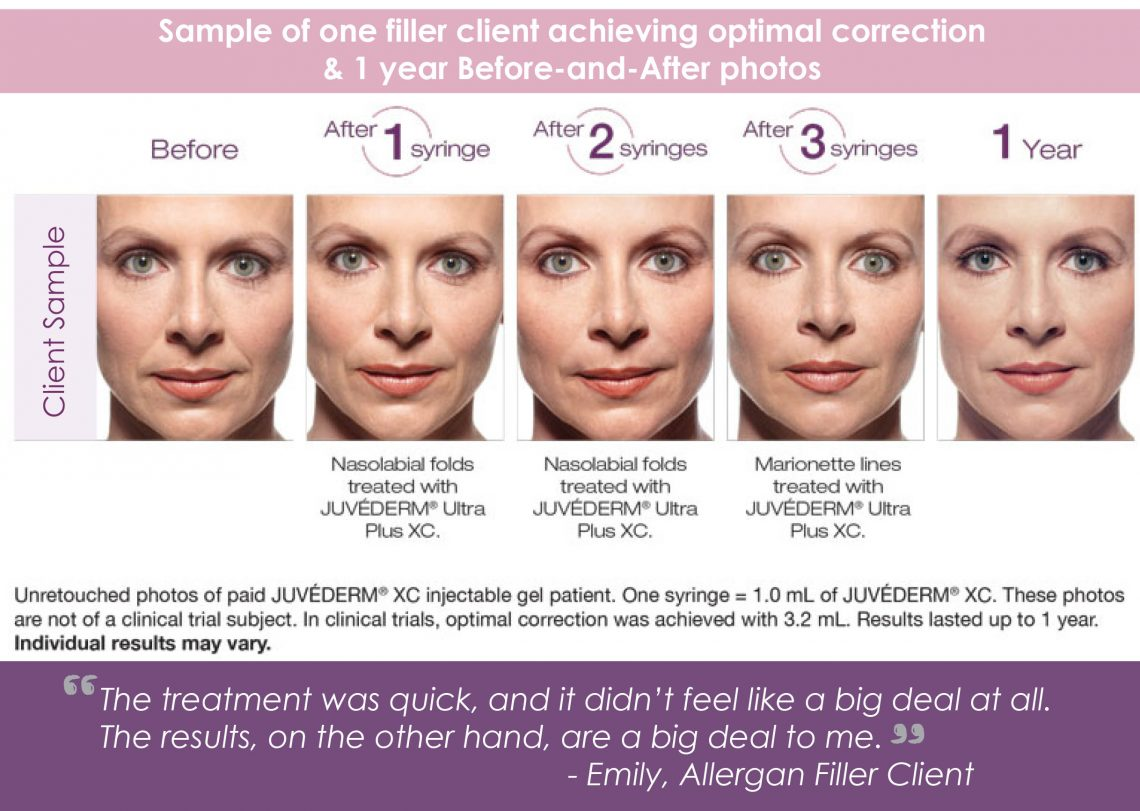 Dermal Fillers & Injectables Fort Collins - Book A Med Spa