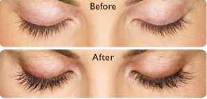 152bbdc49c0 If you noticed that your lashes are getting thinner, we at Xanadu Med Spa  have the solution: