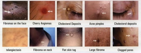 Skin Tag Treatment Fort Collins - Book A Consultation