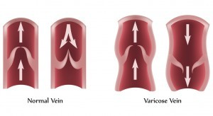 Varicose-Veins-300x164