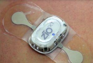 arrhythmia sensor